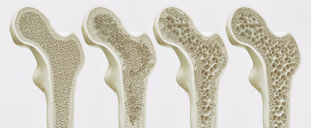 Healthy Bones and Joints are Crucial to Senior Independence