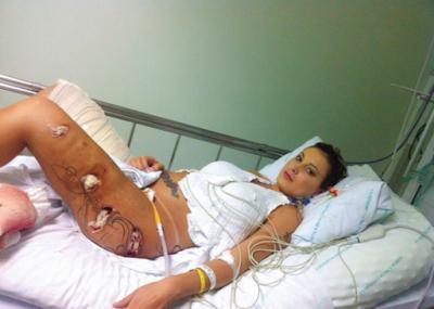 خطير جداا...فتاة برازيلية انفجرت مؤخرتها اثناء ممارسة الرياضة والسبب صادم
