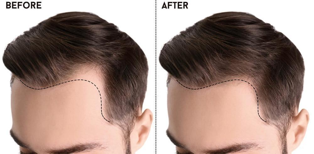 كيف تتم عملية زراعة الشعر واضرارها ونتائجها