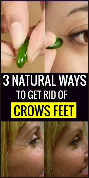 Best 3 Natural Ways To Get Rid Of Crows Feet