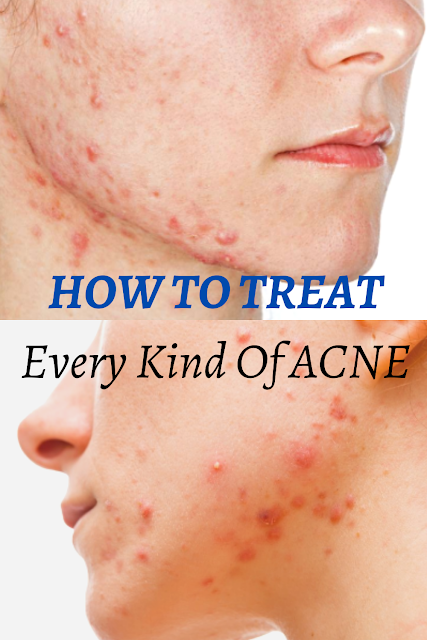 HOW TO TREAT EVERY KIND OF ACNE