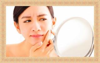وصفة لإزالة الحبوب السوداء من الوجه