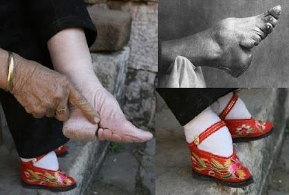 محجم الأقدام مقياس الجمال الذي دمر أقدام النساء