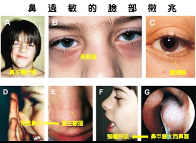 鼻過敏兒童的面部特徵