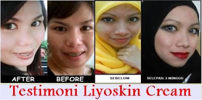 Cream Yang Ampuh Menghilangkan Flek Hitam (Liyoskin)