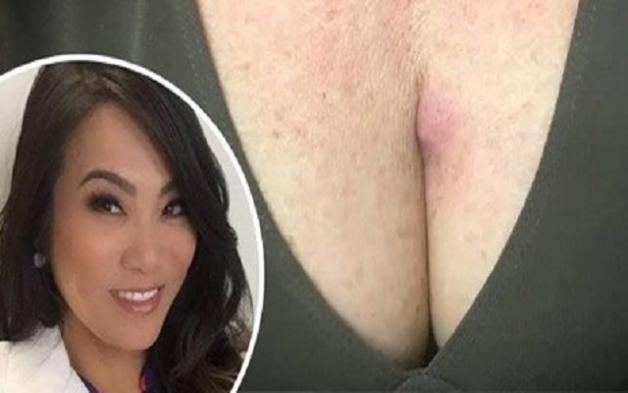 Αντέχετε να δείτε τι βγήκε από το στήθoς αυτής της γυναίκας; (ΒΙΝΤΕΟ)