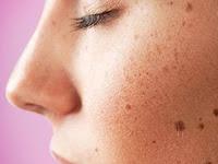 Tips Menghilangkan Flek Hitam Pada Wajah