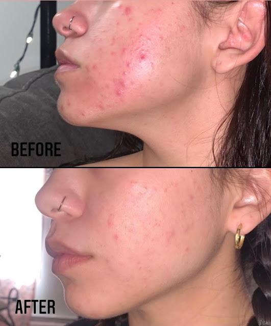 Dites adieu à la peau desséchée et acné avec du savon à la glycérine