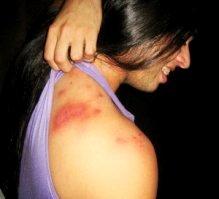 Queimadura nas costas causada por potó, inseto