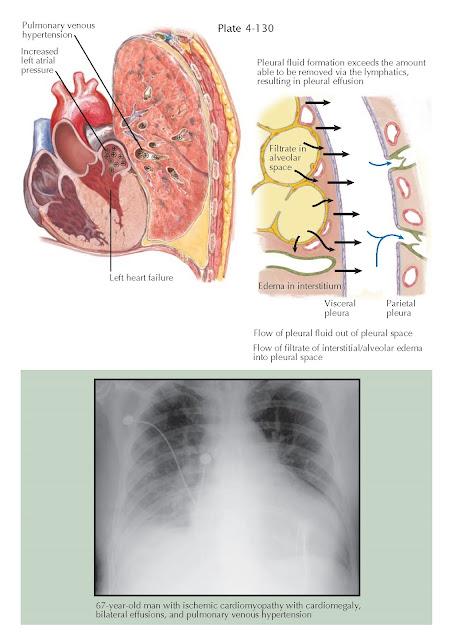 PLEURAL EFFUSION IN HEART DISEASE