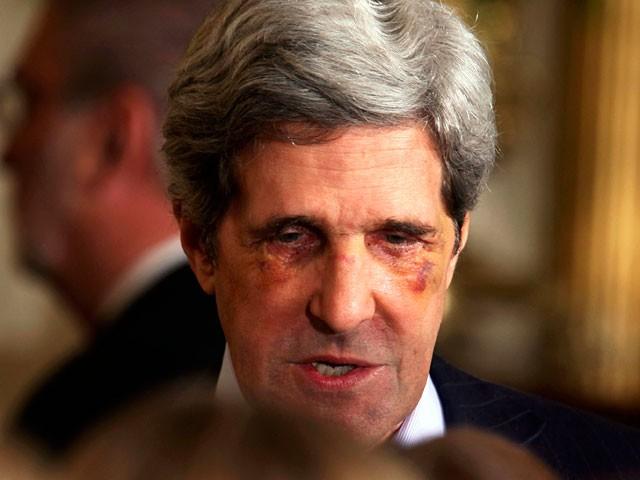 លោក John Kerry ត្រូវស្វាគមន៍ ដោយកណ្តាប់ដៃឡើង ជាំភ្នែកនៅទីក្រុងរ៉ូម (Video)