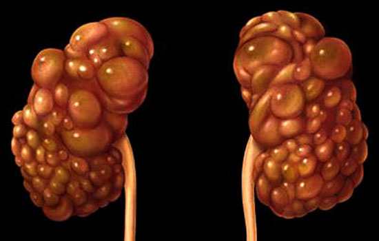 Habits Like These Can Damage Your Kidney