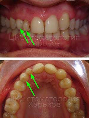 Зубной ряд пациента с ретинированным клыком