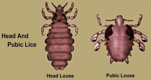 Head And Pubic Lice