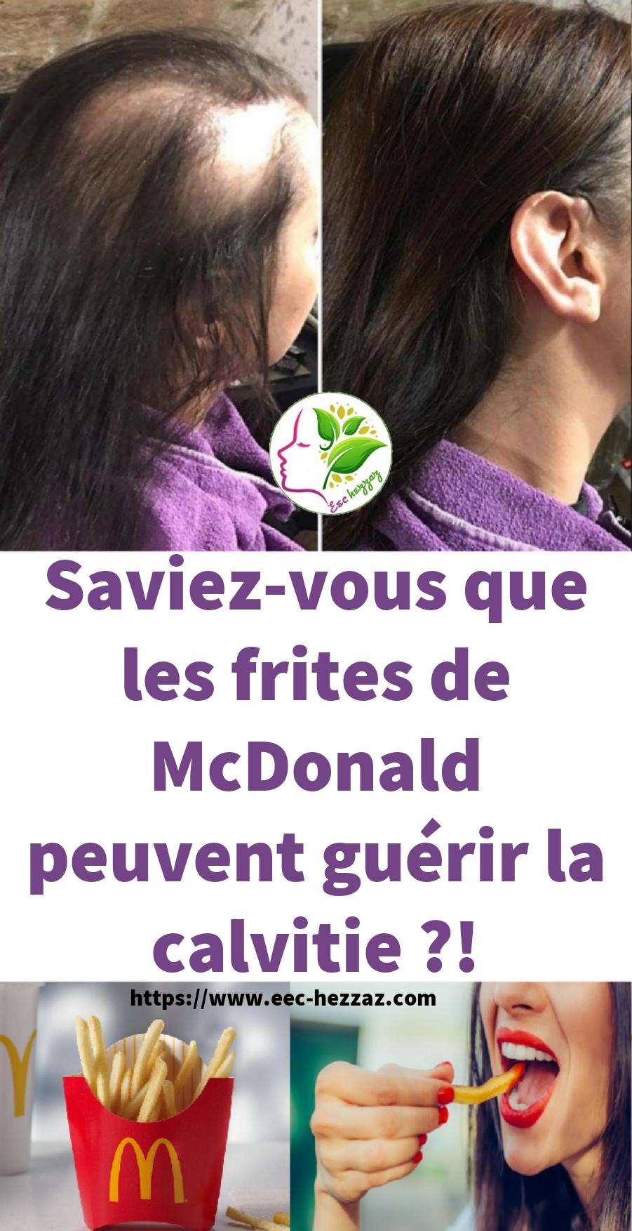 Saviez-vous que les frites de McDonald peuvent guérir la calvitie ?!