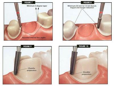 Chỉnh răng hô bằng phương pháp mài răng