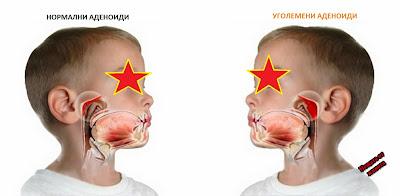 Симптоми и лечение на аденоиди при децата