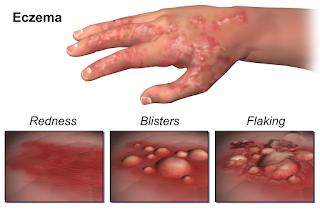 Baby Eczema