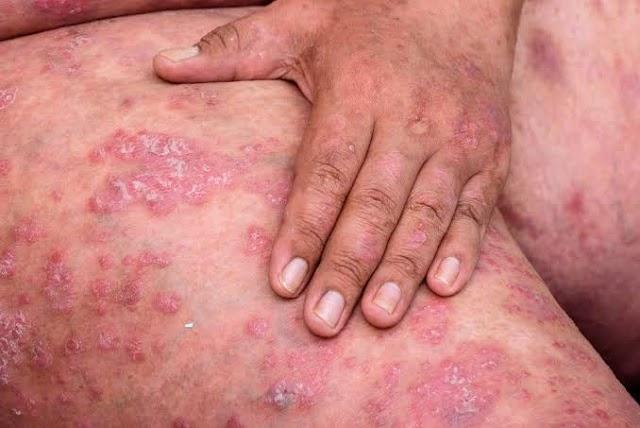 High  Risk of Skin Cancer?
