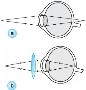 (a) Rabun dekat. (b) Rabun dekat ditolong dengan kacamata berlensa positif.