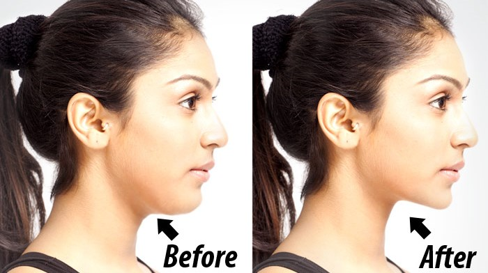 Double Chin Exercises – Learn How To Lose Double Chin And Neck Fat ...