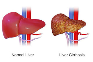 Liver normal dengan yang menderita Sirosis Hati
