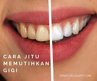 Cara Jitu Memutihkan Gigi