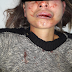 Alto Araguaia| Homem é preso pela Polícia Militar após espancar esposa