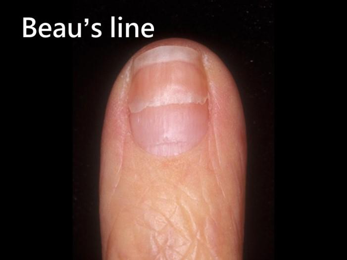 指甲乾癬-Beau's line