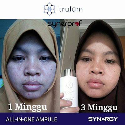 Jual Obat Penghilang Jerawat Trulum Skincare Anggrek Gorontalo Utara