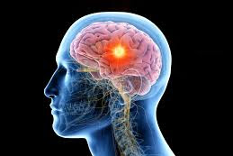 Manfaat Olah Raga Bagi Otak