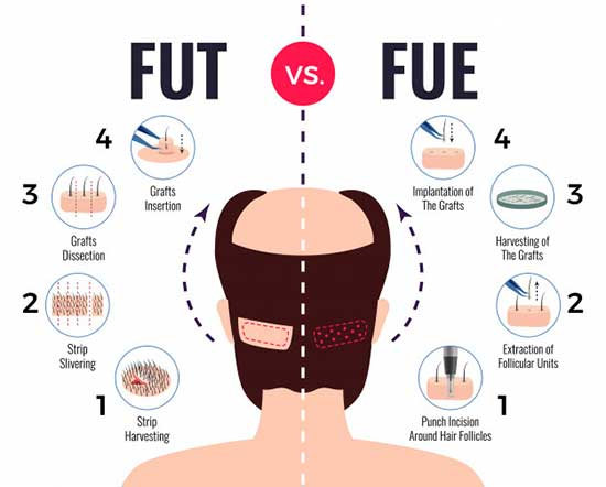 fut-vs-fue Types of Hair Transplant Surgery method