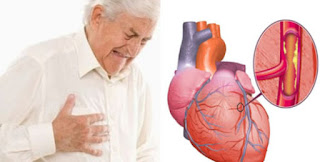 makanan sedap; penyebab kolesterol; kaki makan; makanan yang mempunyai kolesterol; kolesterol jahat; sakit jantung; stroke