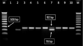 Pebedaan dan Persamaan Real-time PCR dengan PCR konvensional