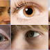If You See These Unusual Things In Your Eyes, Better See Your Doctor Before It's Too Late