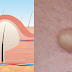 Sebaceous Cysts: Causes, Symptoms, Diagnosis, Prevention and Treatments
