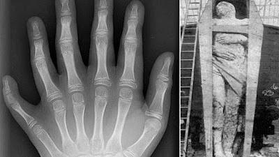 Seis-dedos