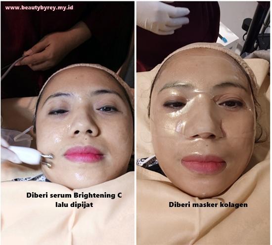 Treatment Korean Bright Toning Di Ella Skin Care Sidoarjo