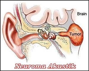 Cara Mengobati Neuroma Akustik