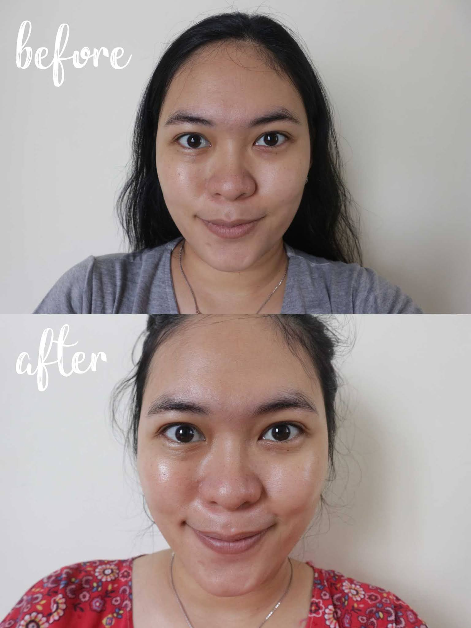 This Is Real And This Is Me Scarlett Whitening Serum Amankah Untuk Bumil