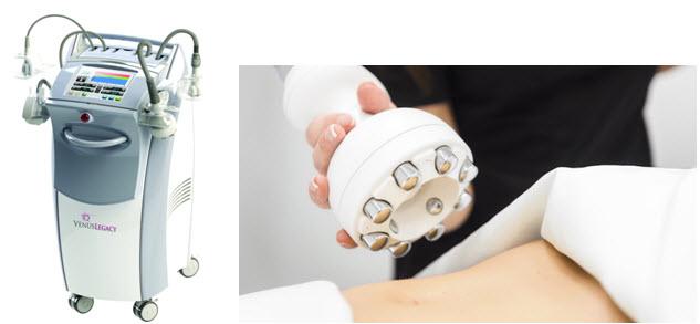 Venus Legacy noninvasive skin tightening device