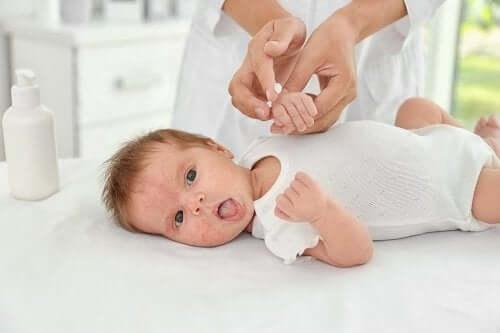 Mụn ở trẻ sơ sinh Nguyên nhân và cách điều trị