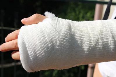How to Cure Broken Bones Quickly