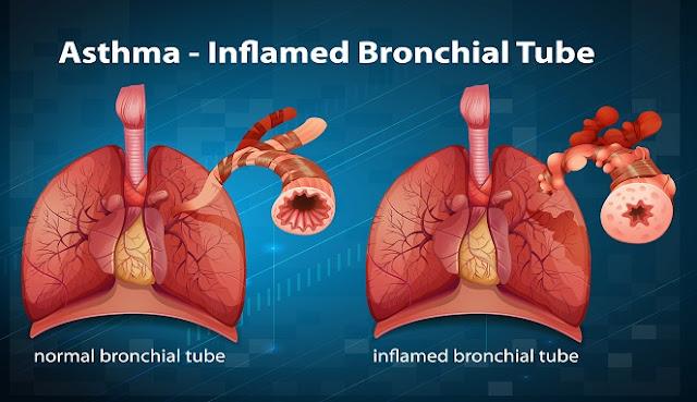 penyebab penyakit asma dan ciri cirinya