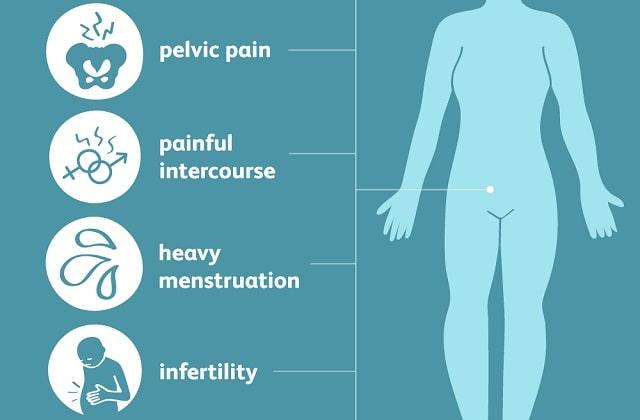 endometriosis symptoms causes treatment pelvic pain