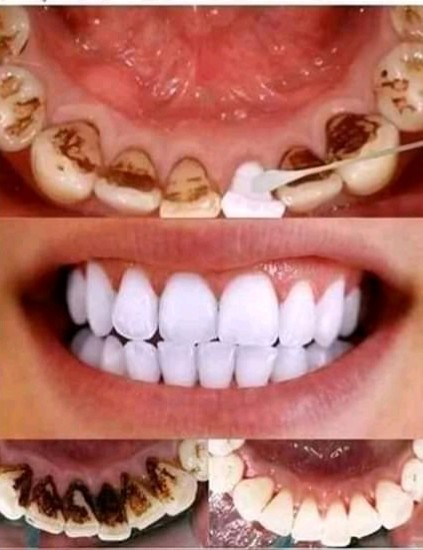 TESTED & TRUSTED HOME REMEDIES: WHITEN YOUR TEETH AND REMOVE TARTAR NOW