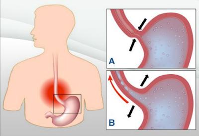 Comment guérir le reflux gastrique ?