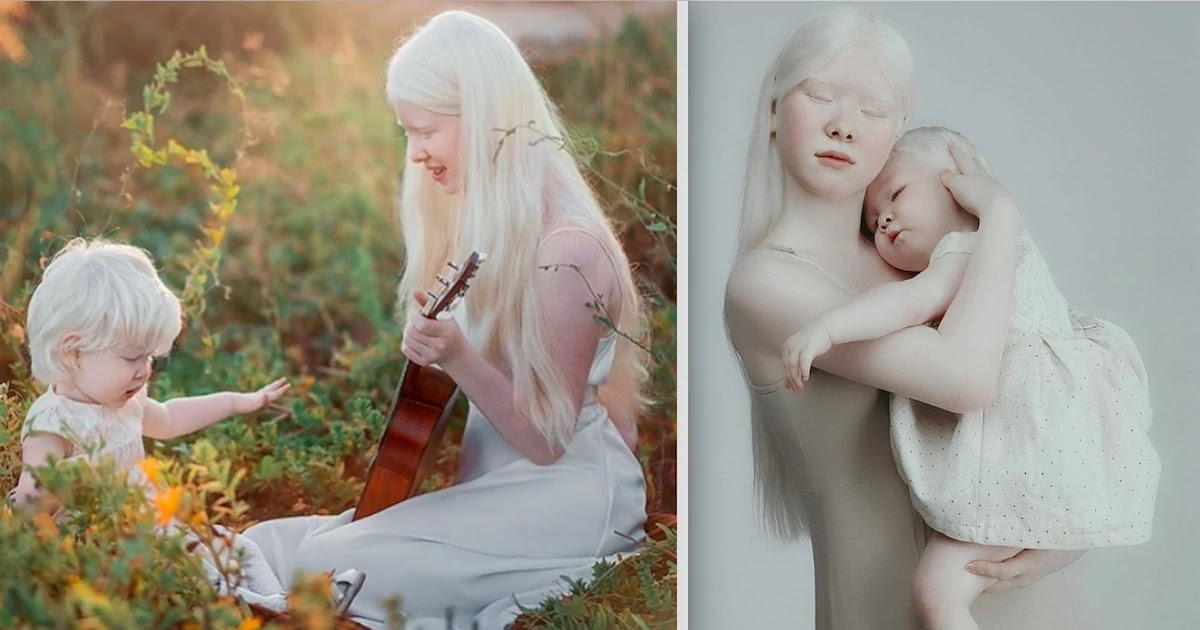 12 Years Apart Albino Sisters Share Mesmerizing Pictures That Exalt The Beauty Of Their Condition