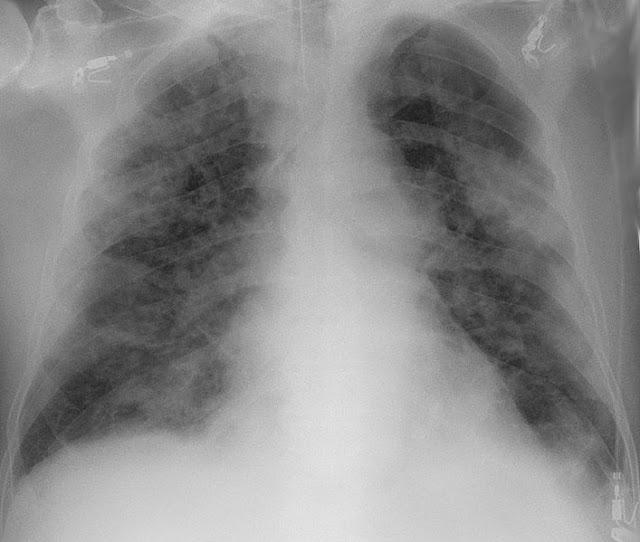 Placa de raios X do toras dun paciente con pneumonía derivada do COVID-19. Autor:Hellerhoff. Obtida de https://commons.wikimedia.org/wiki/File:COVID-19_Pneumonie_-_82m_Roe_Thorax_ap_-_001.jpg Creative Commons recoñecemento compartir igual 3.0 Unported.