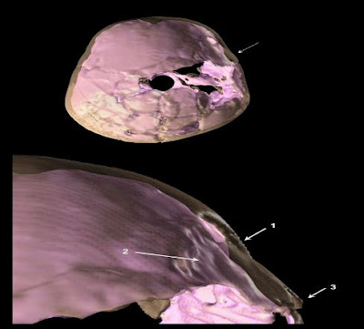 is a 3-D reconstruction of skull compound fracture and endocranial